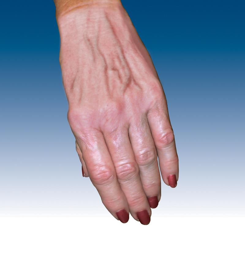 Got Time On Your Hands? Ugly hand veins? – Morrison Vein\'s Blog