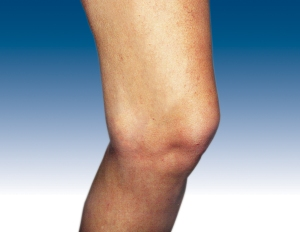After sclerotherapy
