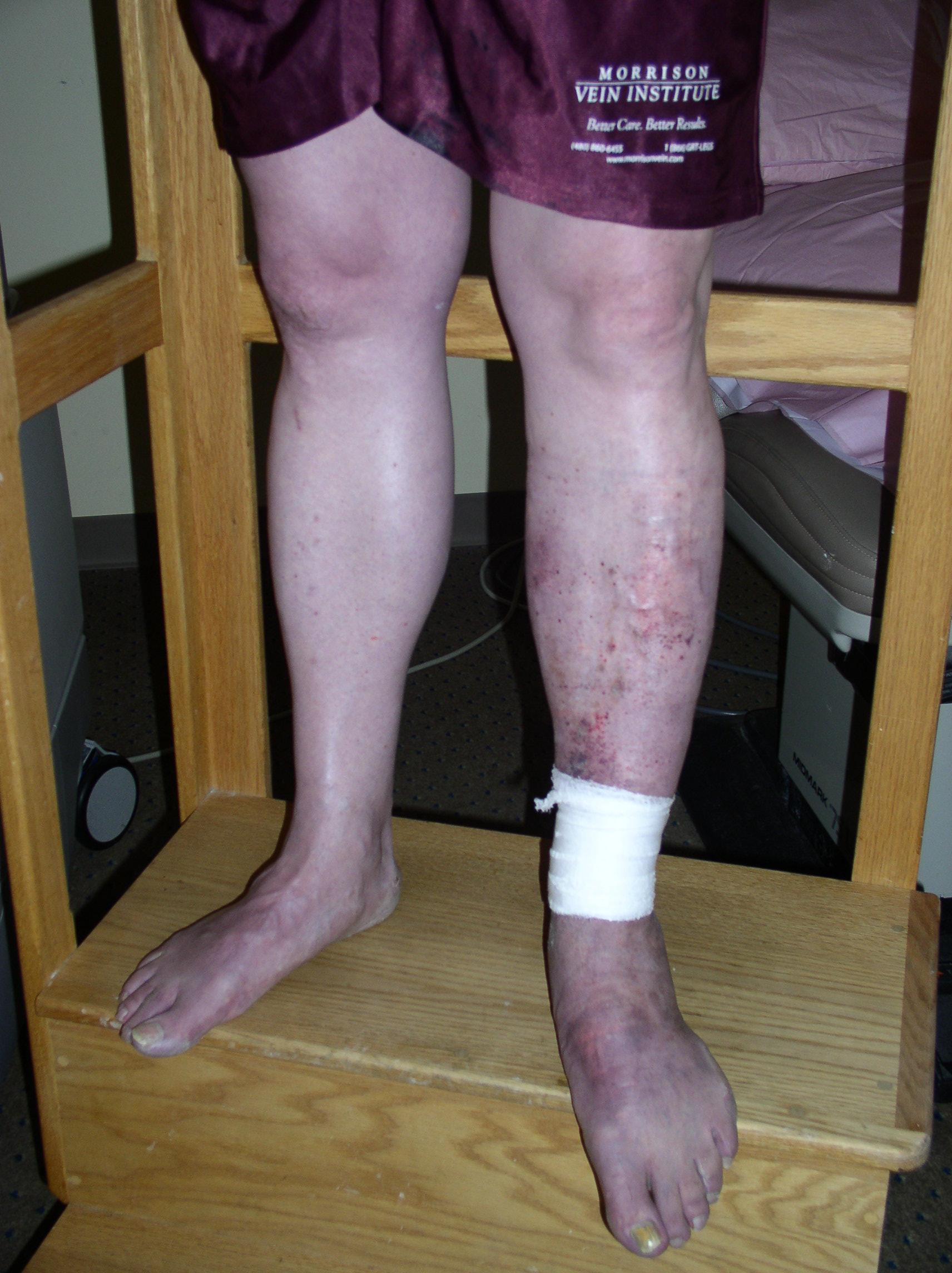 leg wounds #9
