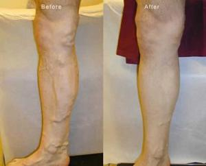 How long to wear surgical stockings after hip replacement