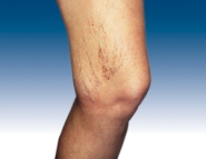 Spider veins before sclerotherapy