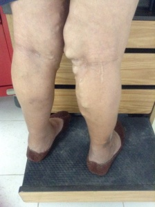 Varicose Veins need treatment
