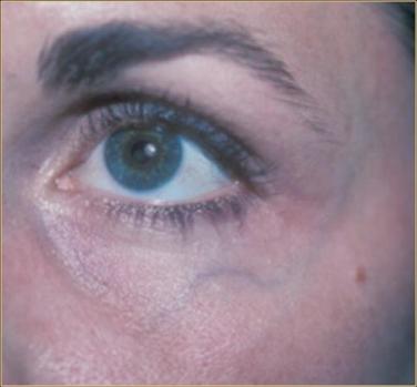 Periorbital vein and artery